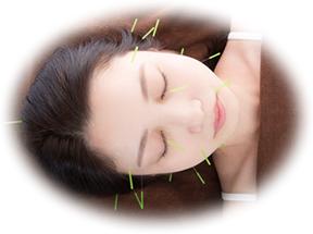 美容鍼の施術を受ける女性写真