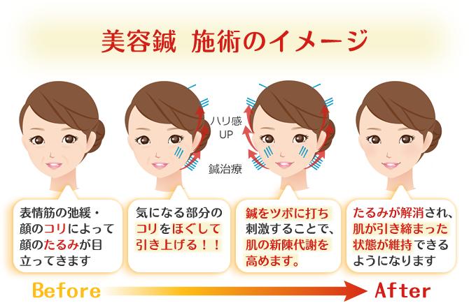 美容鍼 施術のBefore&Afterイメージ