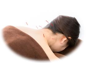 鍼の施術の様子